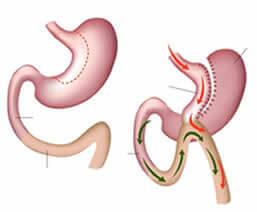 Gastrit Bybass Ameliyatı